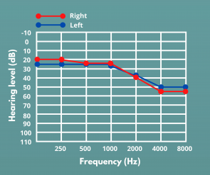 High-frequency hearing loss