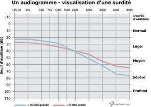 Audiogramme Hear It Org