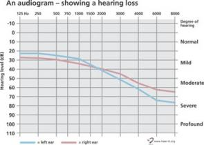 Audiogram Find Out More About The Audiogram How To Read It